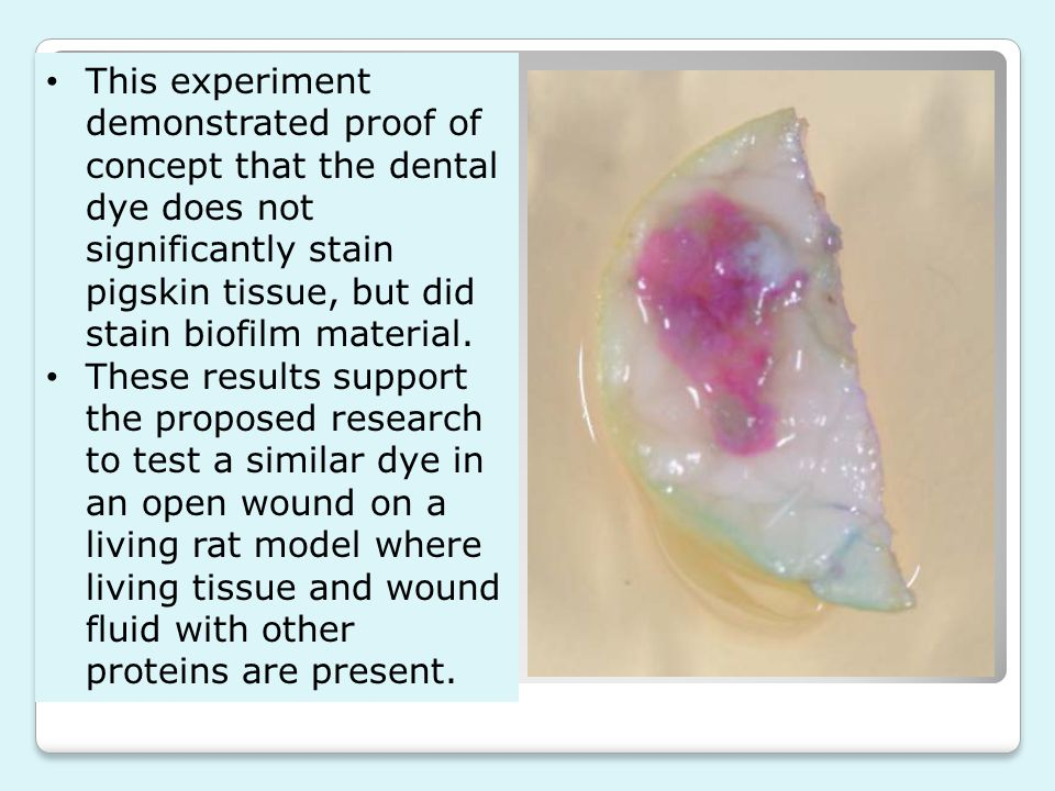 This experiment demonstrated proof of concept that the dental dye does not significantly stain pigskin tissue, but did stain biofilm material.