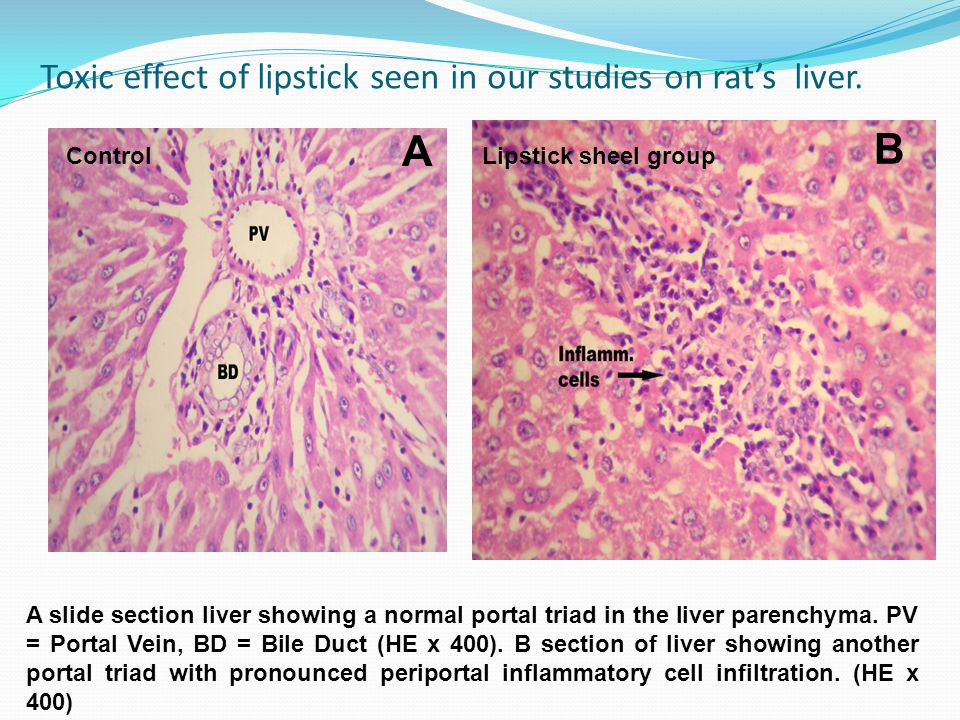 Toxic effect of lipstick seen in our studies on rat's liver.