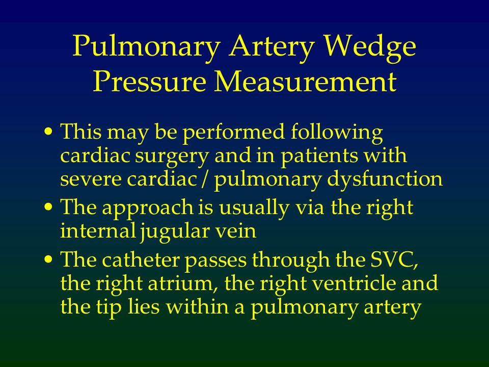 Pulmonary Artery Wedge Pressure Measurement