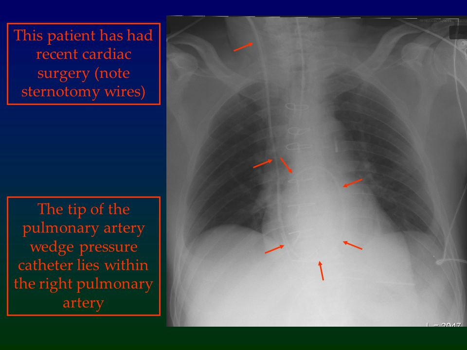 This patient has had recent cardiac surgery (note sternotomy wires)