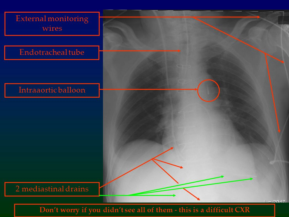 Don't worry if you didn't see all of them - this is a difficult CXR