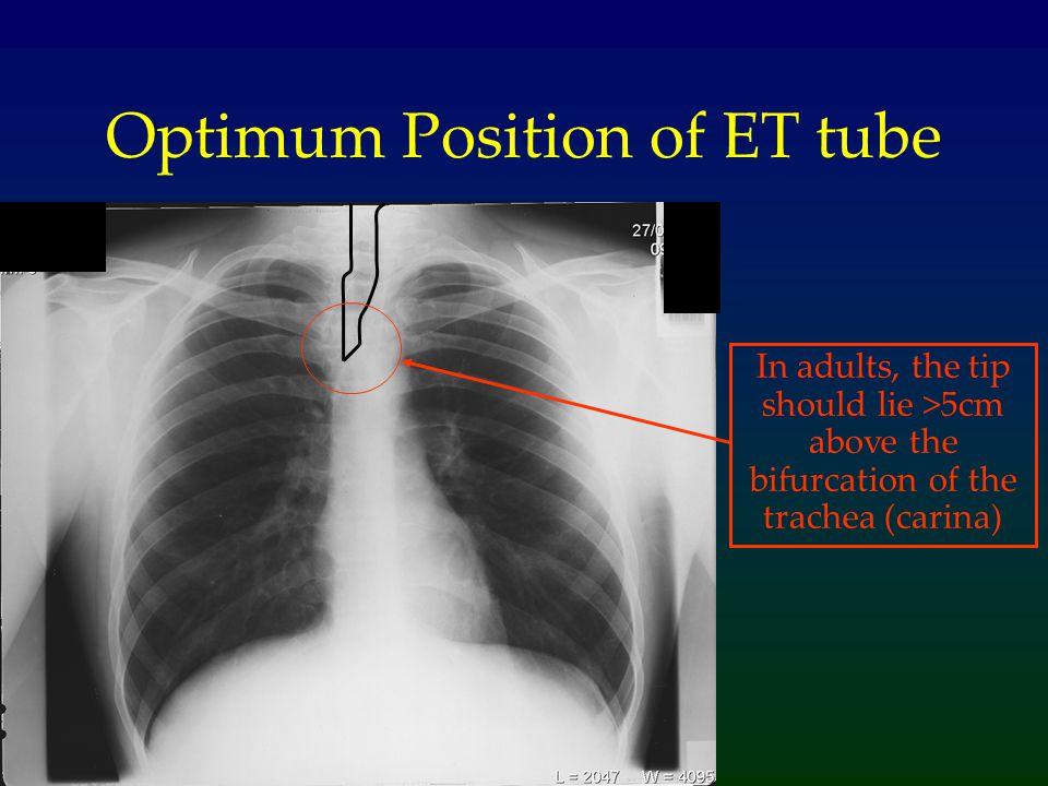 Optimum Position of ET tube