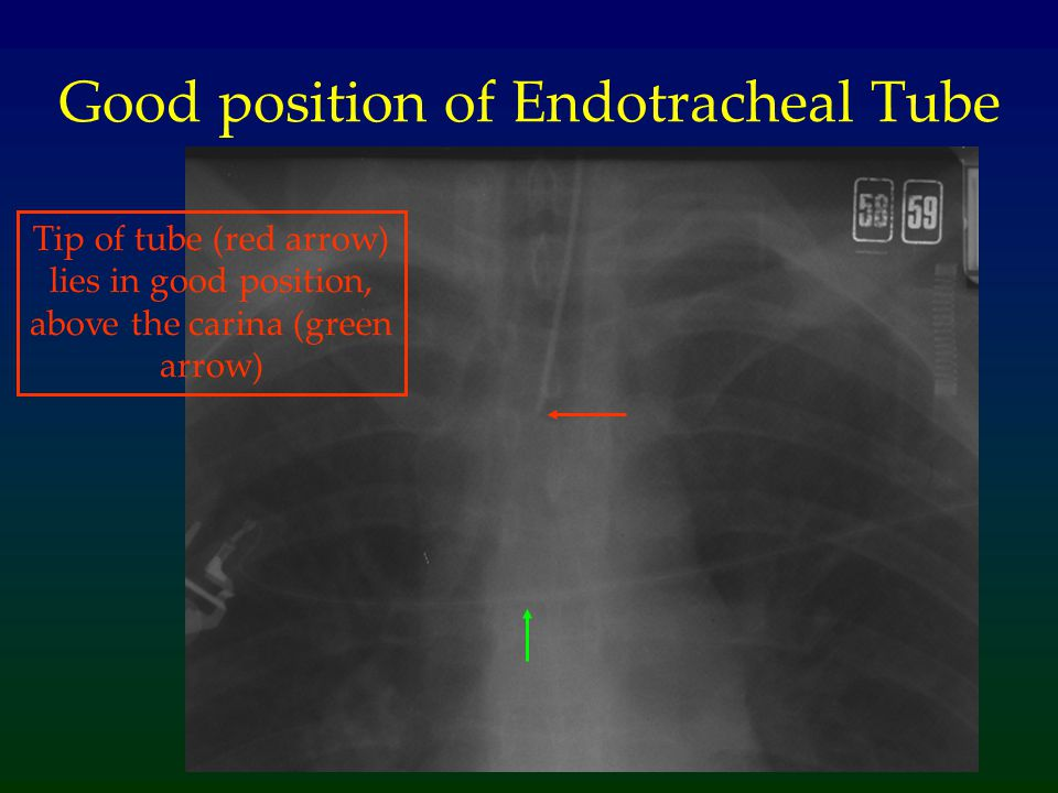Good position of Endotracheal Tube