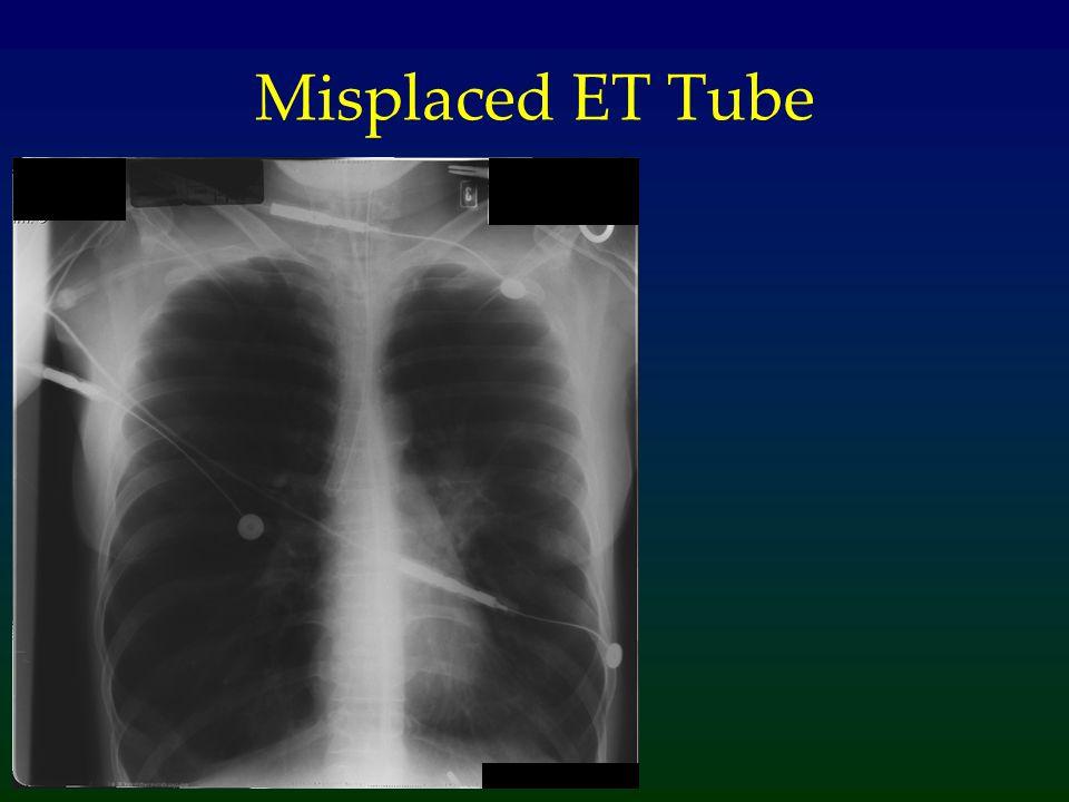 Misplaced ET Tube