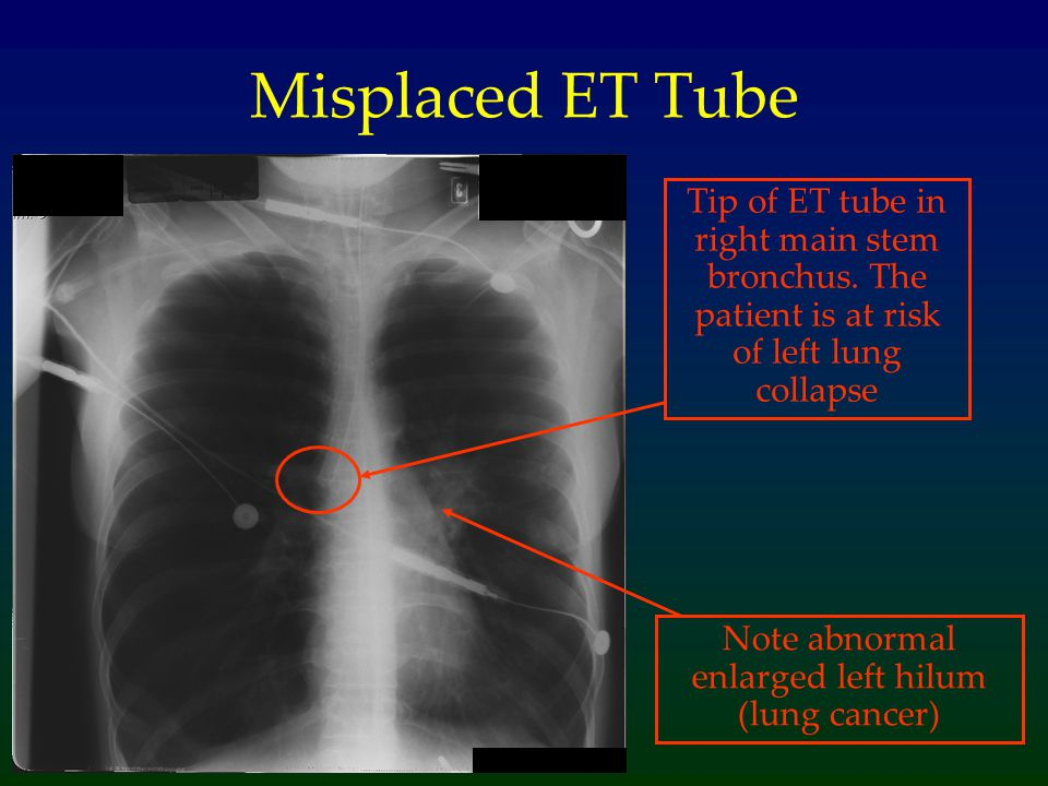 Note abnormal enlarged left hilum (lung cancer)
