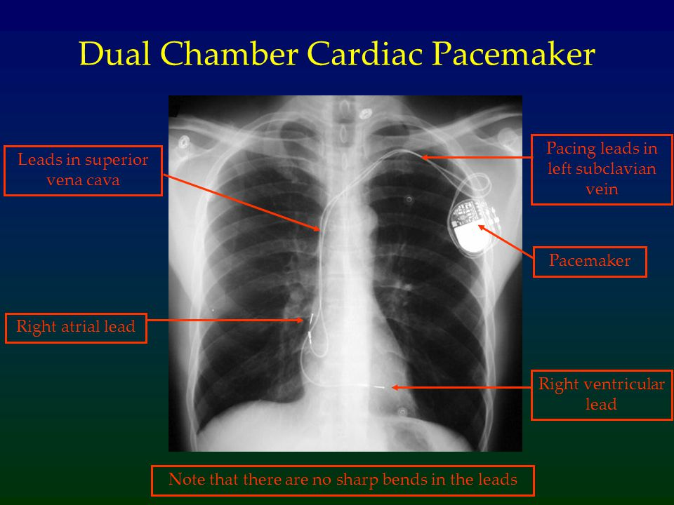 Dual Chamber Cardiac Pacemaker