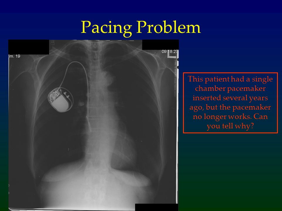 Pacing Problem This patient had a single chamber pacemaker inserted several years ago, but the pacemaker no longer works.