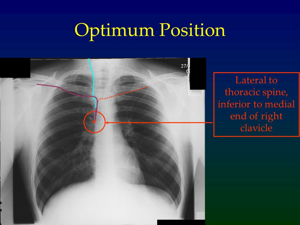 Lateral to thoracic spine, inferior to medial end of right clavicle