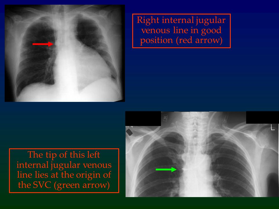 Right internal jugular venous line in good position (red arrow)