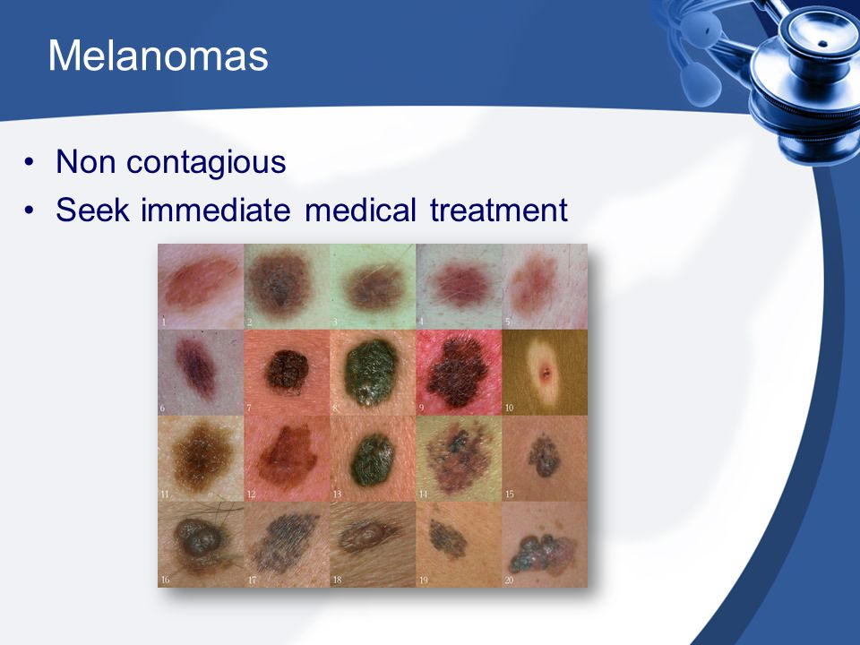 Melanomas Non contagious Seek immediate medical treatment