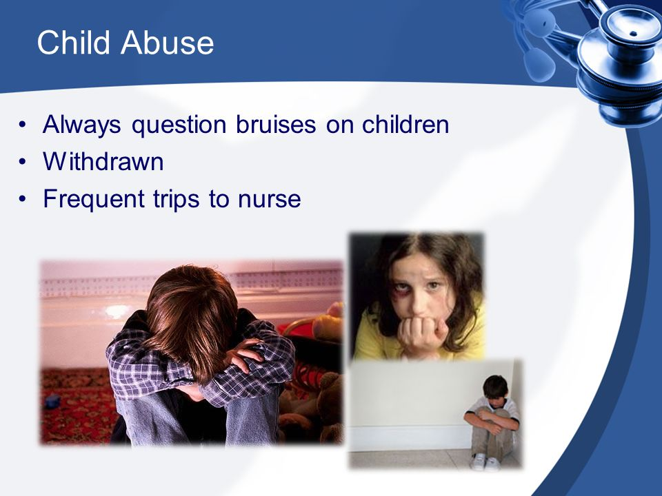 Child Abuse Always question bruises on children Withdrawn