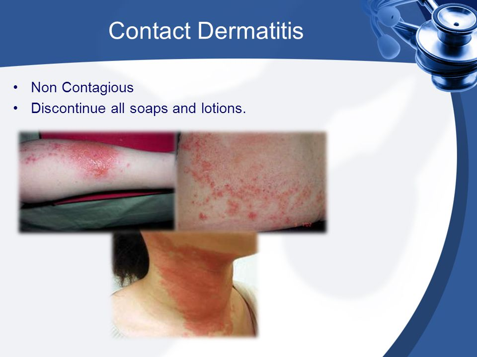 Contact Dermatitis Non Contagious Discontinue all soaps and lotions.
