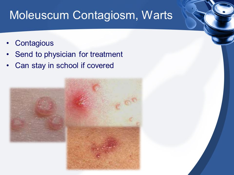 Moleuscum Contagiosm, Warts