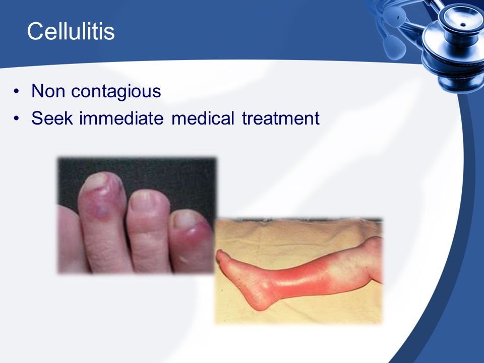 Cellulitis Non contagious Seek immediate medical treatment