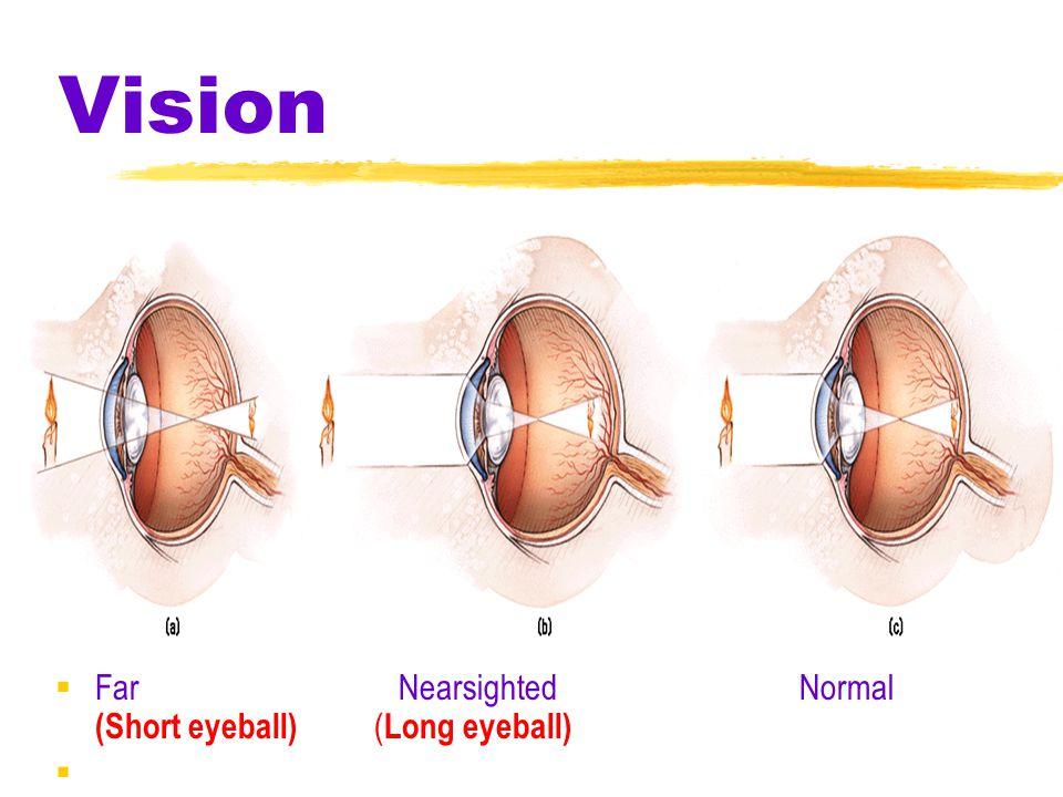 Vision Far Nearsighted Normal (Short eyeball) (Long eyeball)