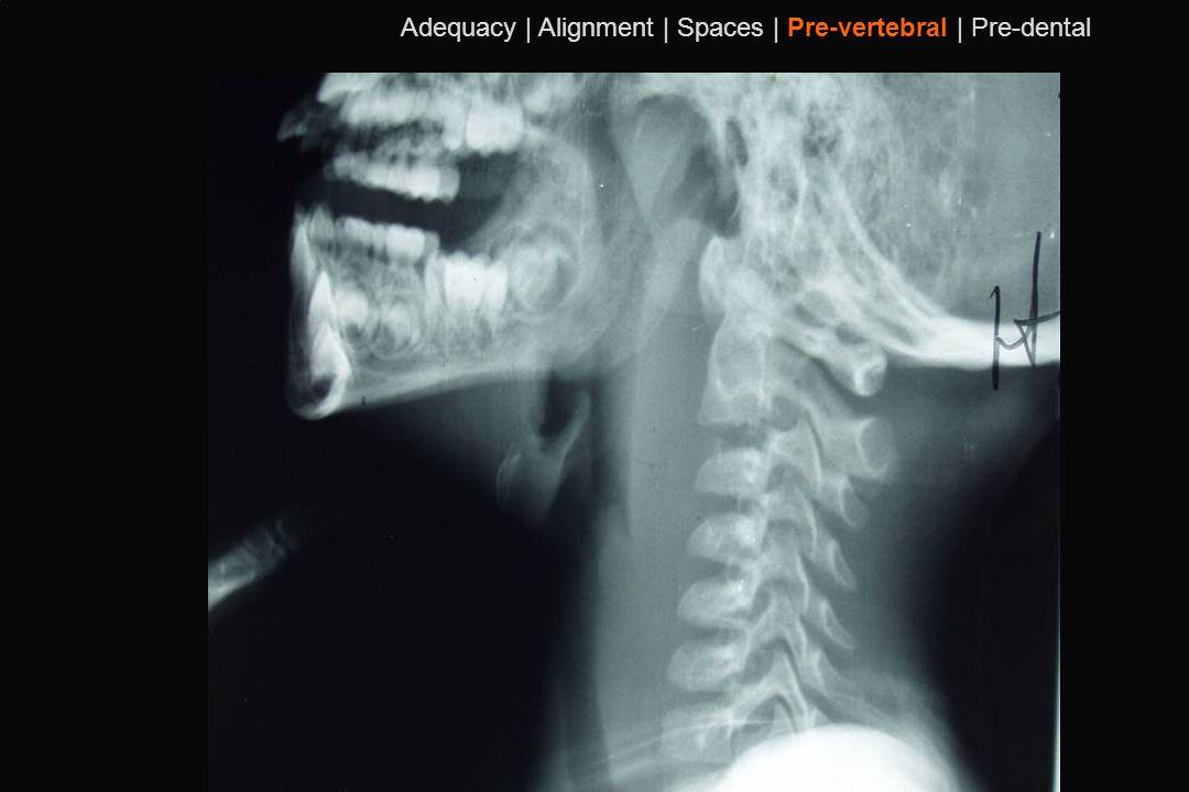 Adequacy | Alignment | Spaces | Pre-vertebral | Pre-dental