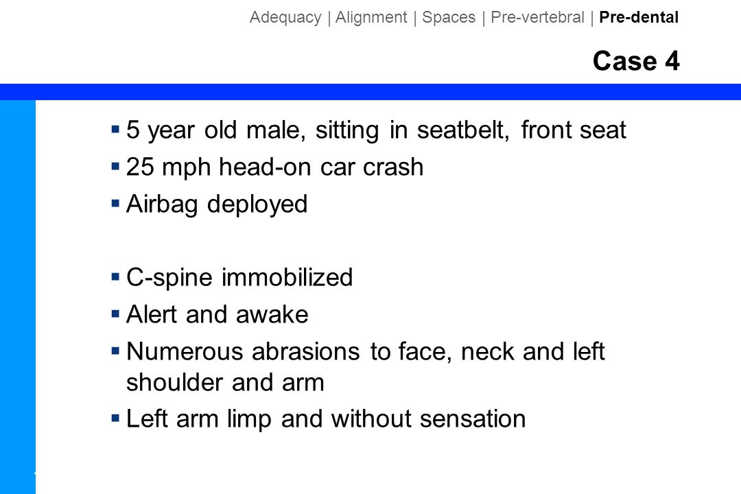 Case 4 5 year old male, sitting in seatbelt, front seat