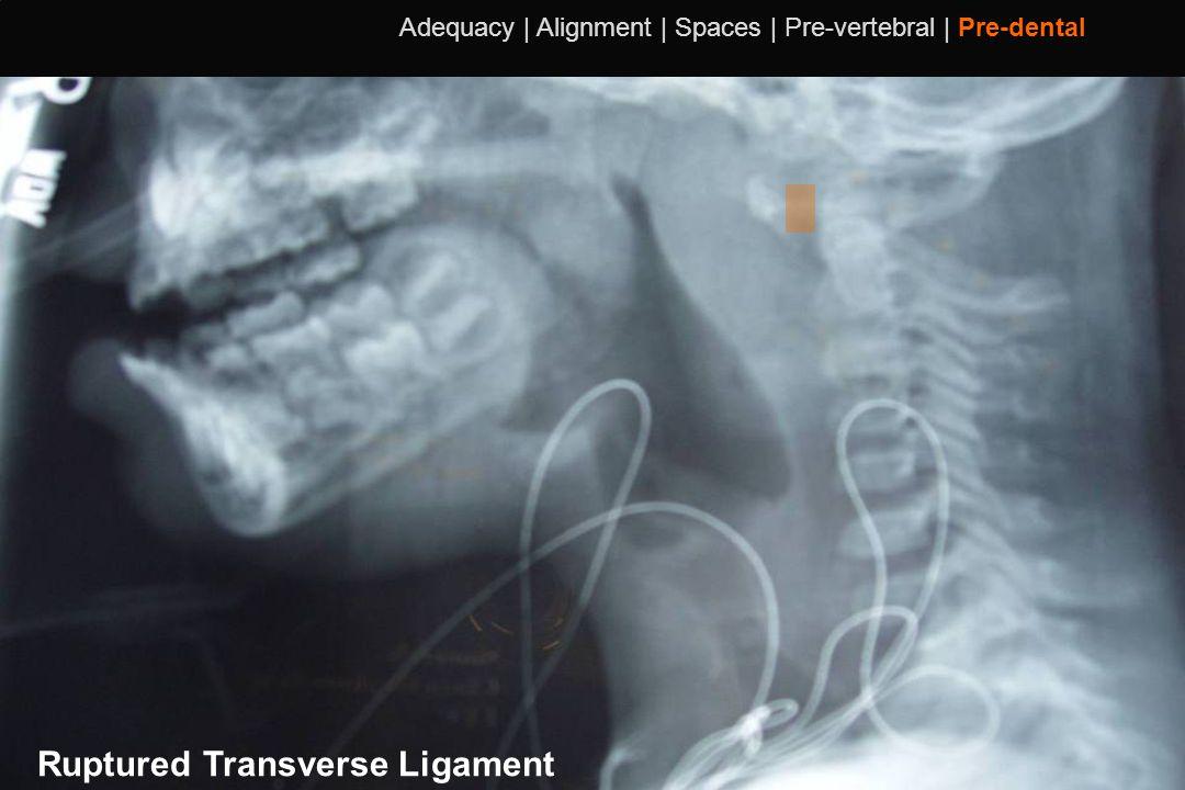 Ruptured Transverse Ligament