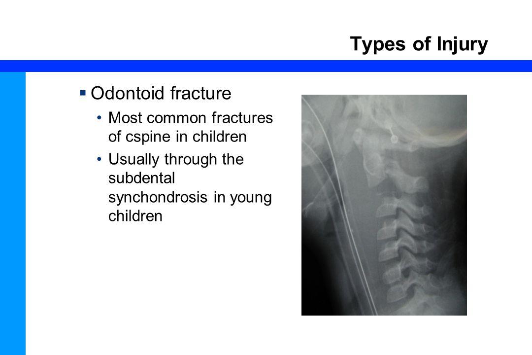 Types of Injury Odontoid fracture