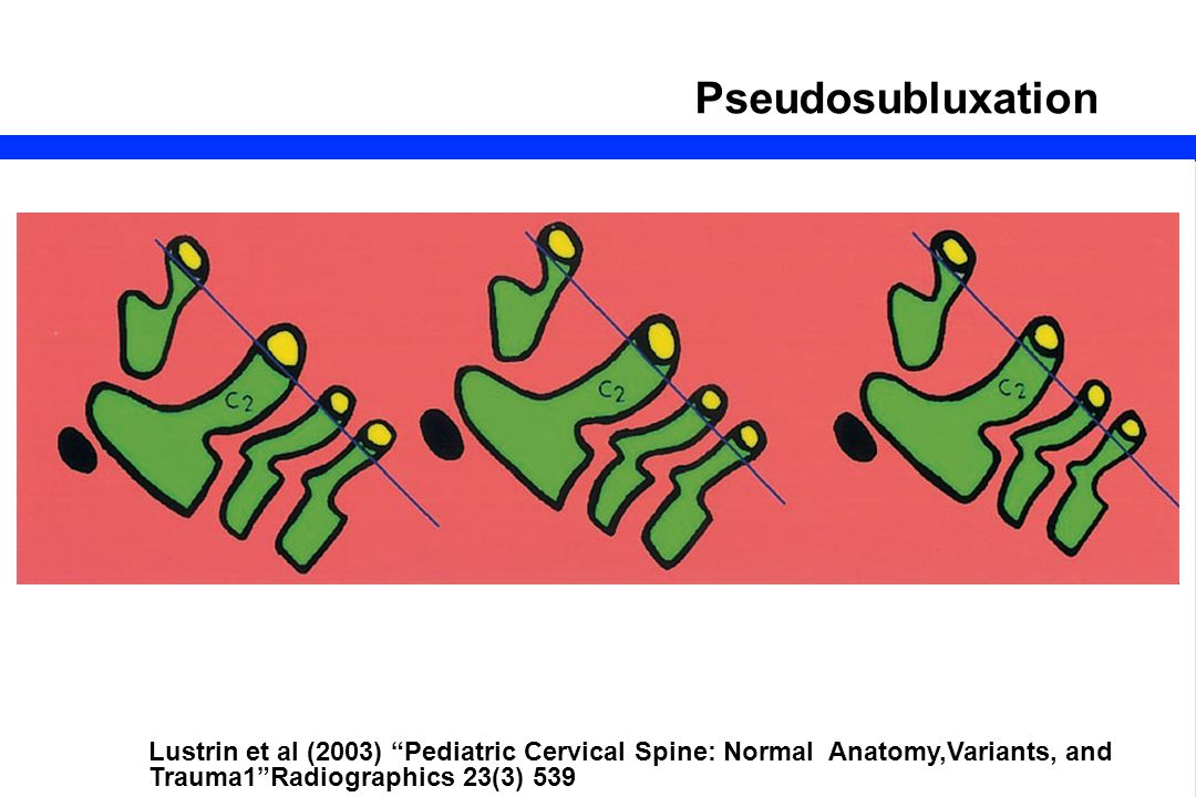 Pseudosubluxation Lustrin et al (2003) Pediatric Cervical Spine: Normal Anatomy,Variants, and Trauma1 Radiographics 23(3) 539.