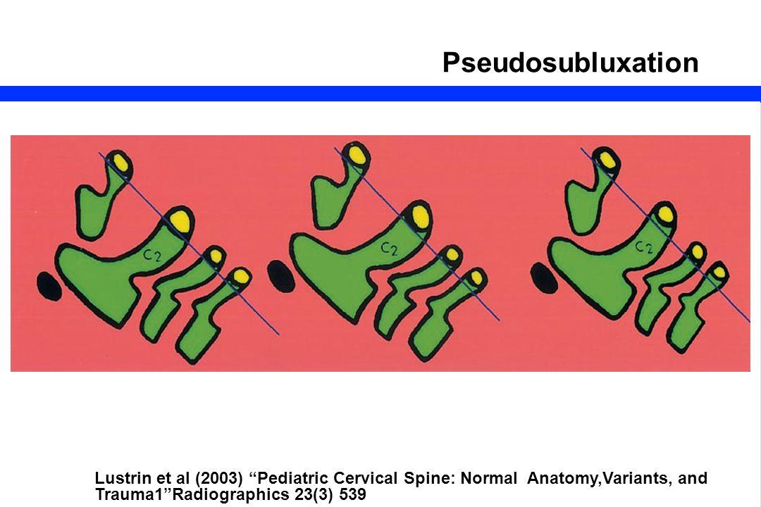 Pseudosubluxation Lustrin et al (2003) Pediatric Cervical Spine: Normal Anatomy,Variants, and Trauma1 Radiographics 23(3) 539.