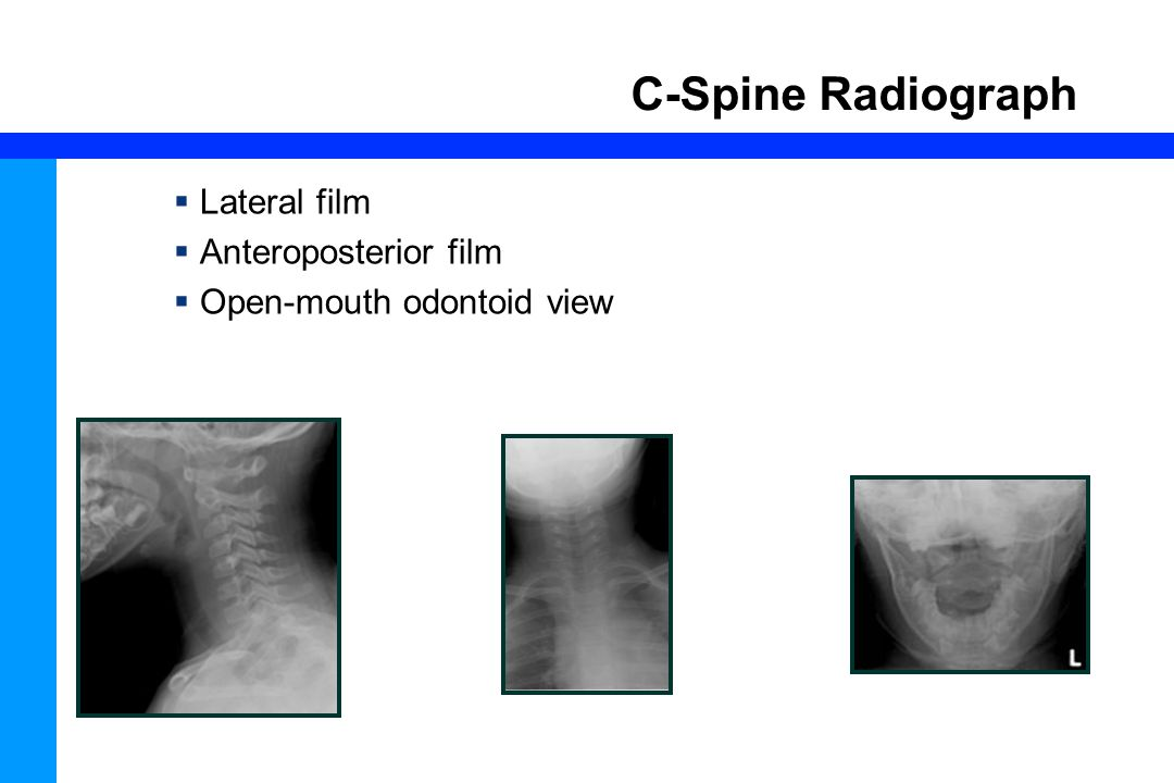 C-Spine Radiograph Lateral film Anteroposterior film