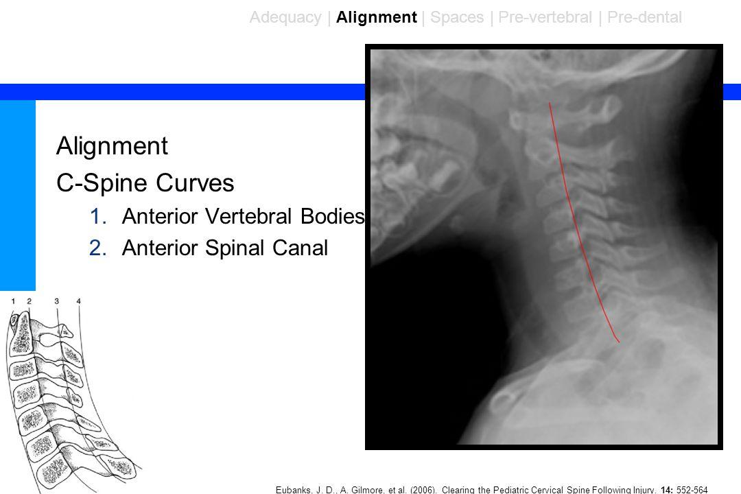 Alignment C-Spine Curves Anterior Vertebral Bodies