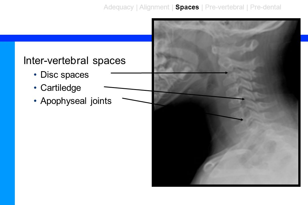 Inter-vertebral spaces