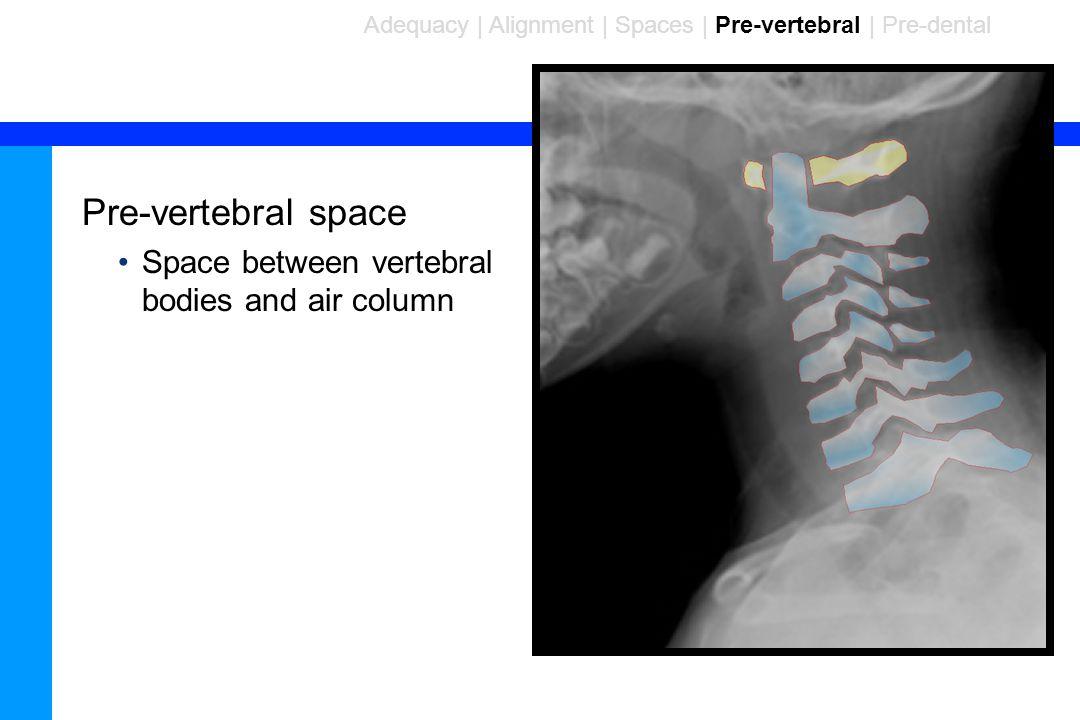 Pre-vertebral space Space between vertebral bodies and air column