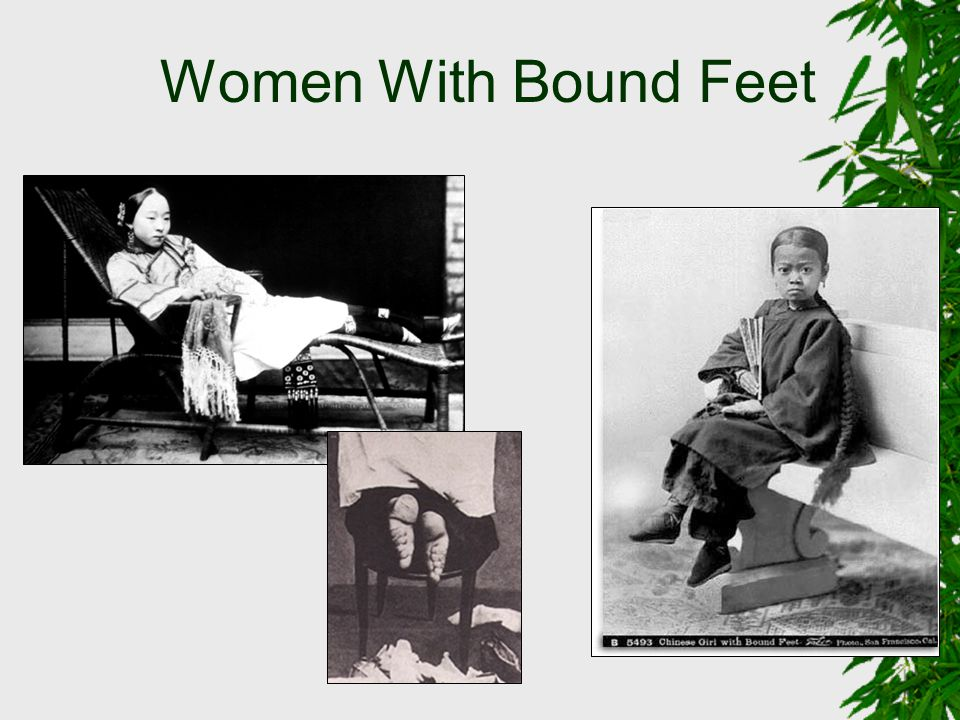 Women With Bound Feet