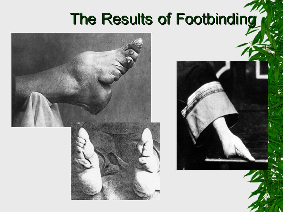The Results of Footbinding
