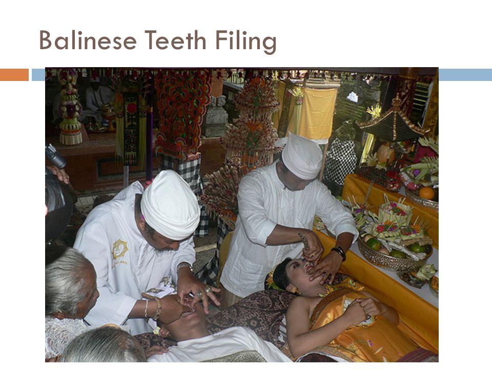 Balinese Teeth Filing