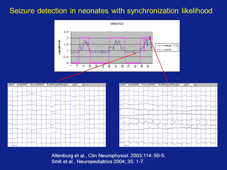 Seizure detection in neonates with synchronization likelihood