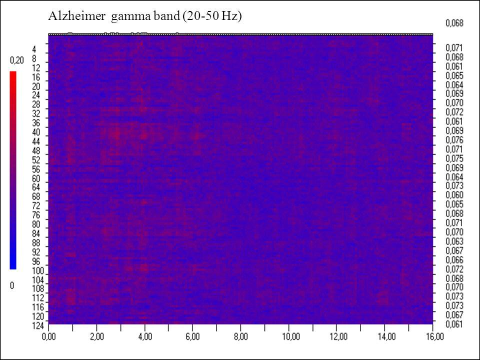 Alzheimer gamma band (20-50 Hz)