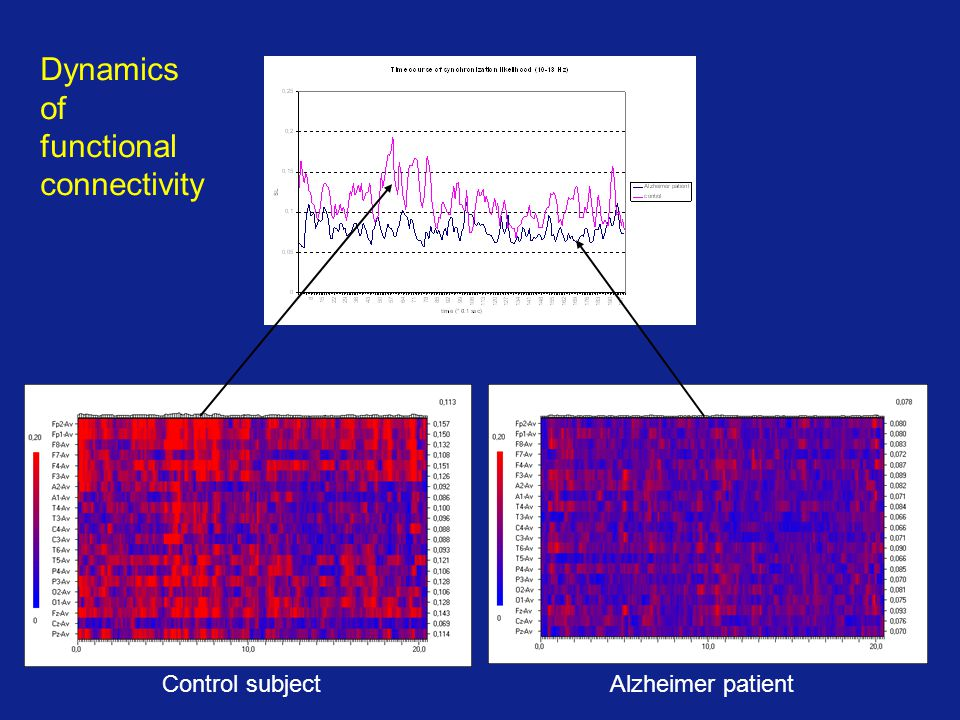 Dynamics of functional connectivity Control subject Alzheimer patient