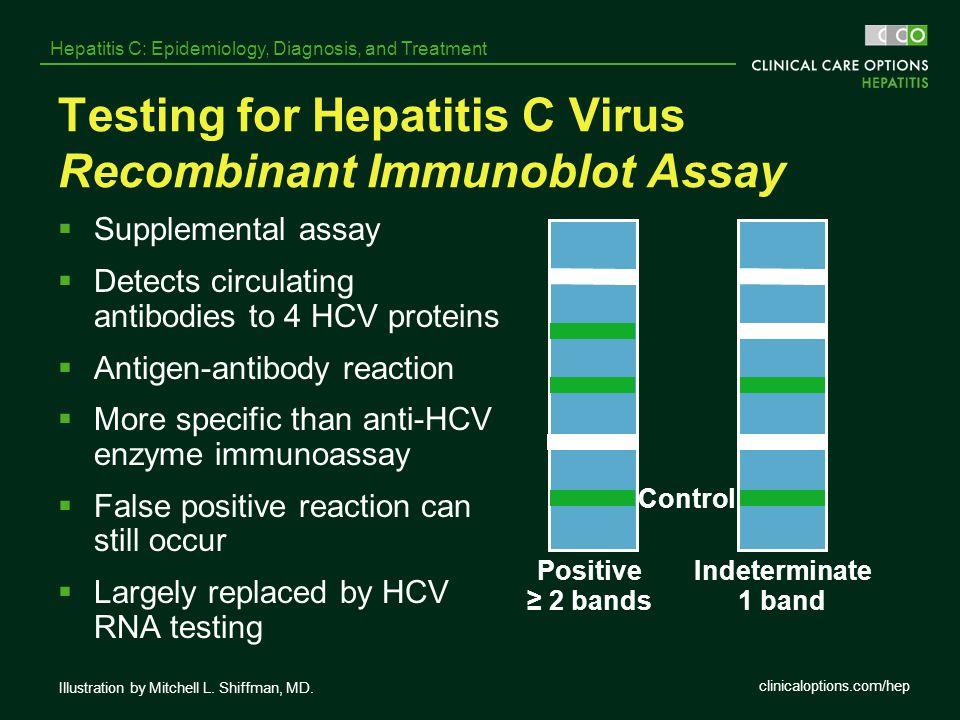 Testing for Hepatitis C Virus Recombinant Immunoblot Assay