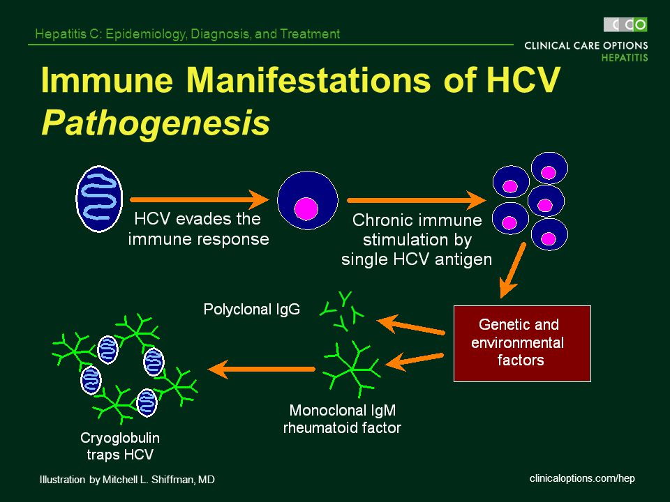 Immune Manifestations of HCV Pathogenesis