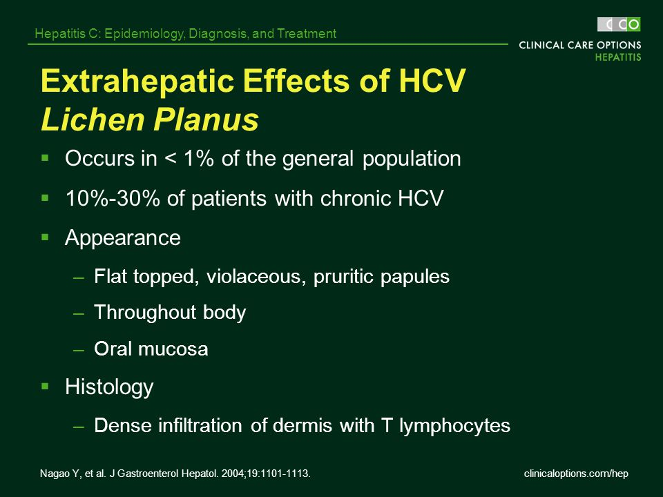 Extrahepatic Effects of HCV Lichen Planus