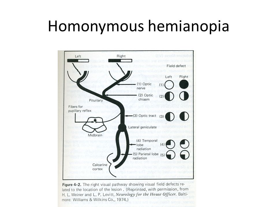 Homonymous hemianopia