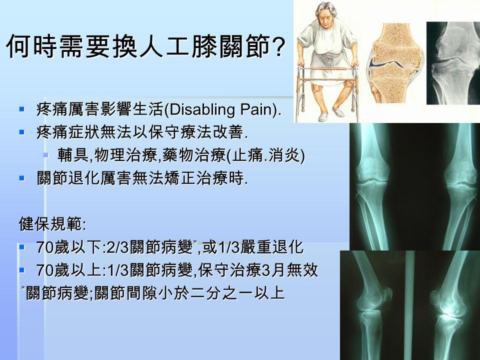 何時需要換人工膝關節 疼痛厲害影響生活(Disabling Pain). 疼痛症狀無法以保守療法改善.