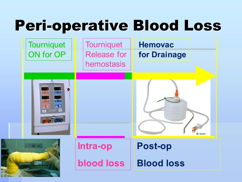 Peri-operative Blood Loss