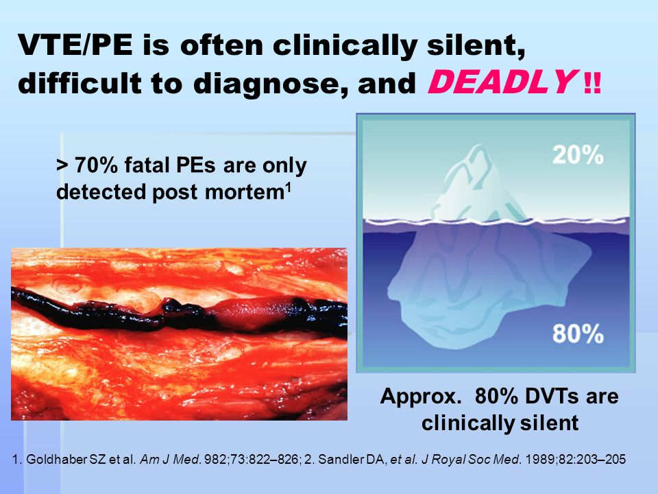 Approx. 80% DVTs are clinically silent