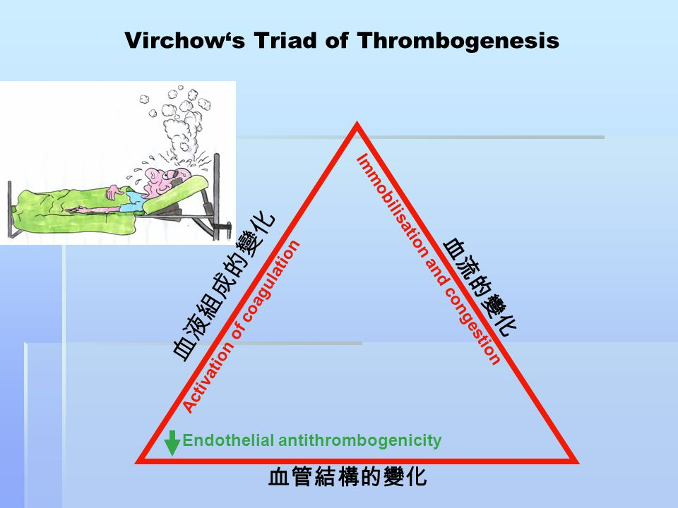 Virchow's Triad of Thrombogenesis