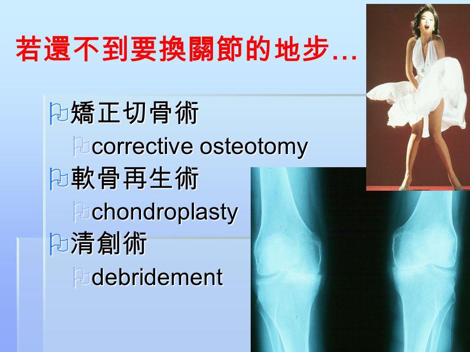 若還不到要換關節的地步… 矯正切骨術 軟骨再生術 清創術 corrective osteotomy chondroplasty
