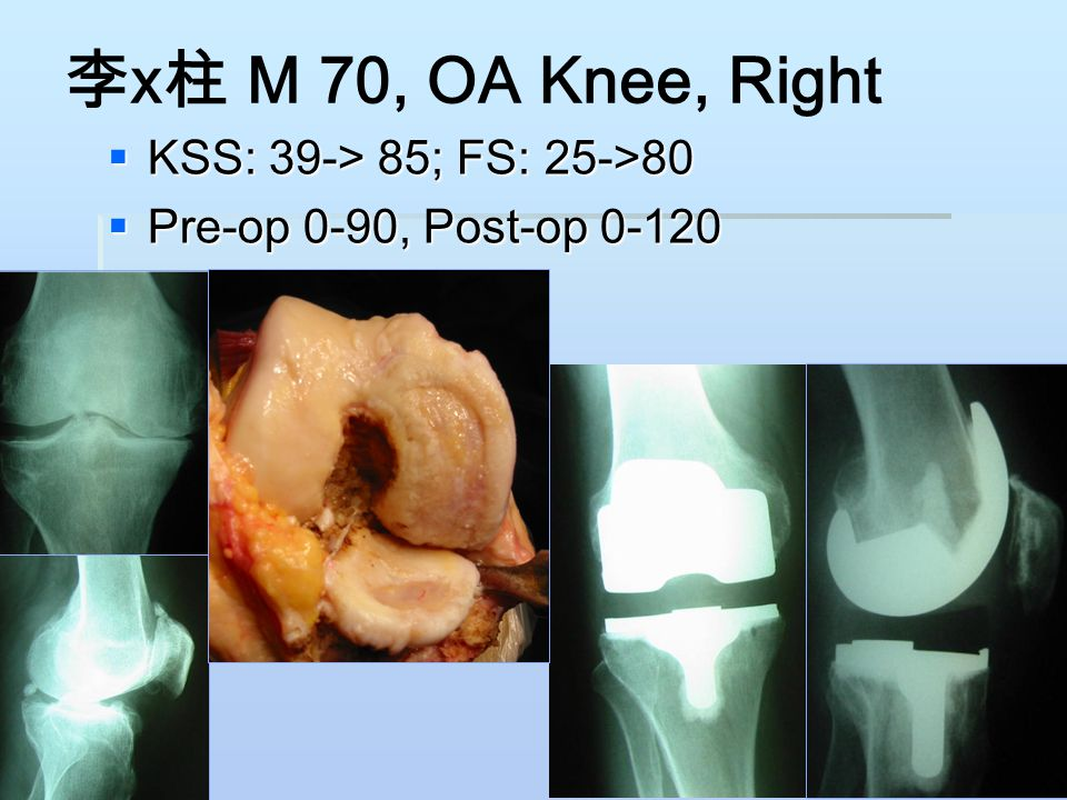 李x柱 M 70, OA Knee, Right KSS: 39-> 85; FS: 25->80