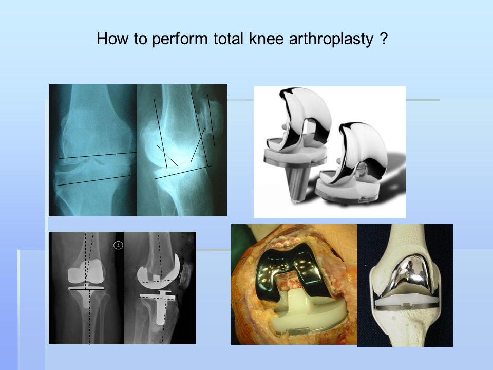 How to perform total knee arthroplasty