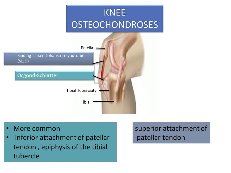 KNEE OSTEOCHONDROSES More common