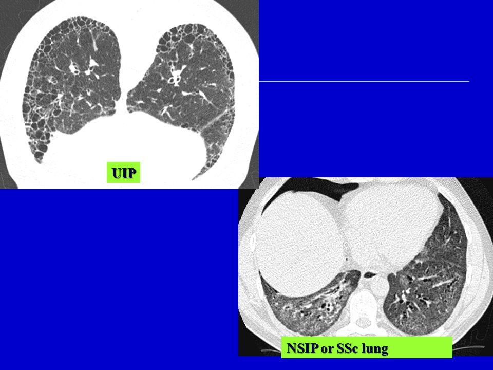 UIP NSIP or SSc lung