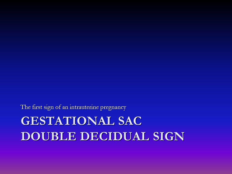 Gestational sac Double decidual sign