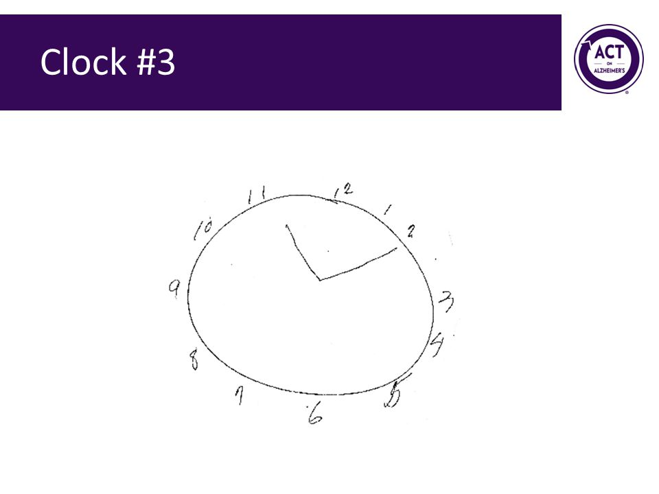 Clock #3 Speaker Notes: Ask the audience how they would score this clock. Score = 2 points.